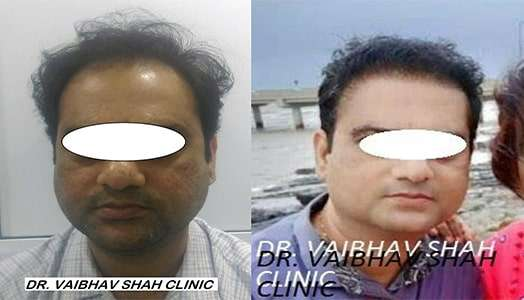 Best Hair Transplant Doctor in Mumbai