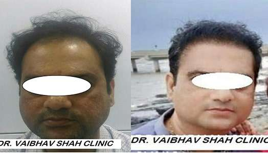 Best Hair Transplant Surgeon in Mumbai