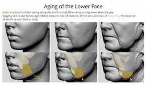 Few indications of facelift surgery is Aging-on-face