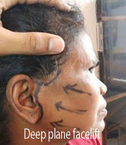 Deep plane facelift