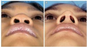Patient-success-story-of-Rhinoplasty-Surgery-in-Mumbai-India