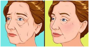 Few indications of facelift surgery is Sagging-on-face.