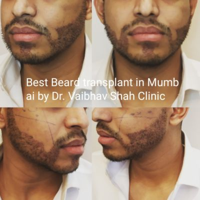 Beard Transplant in Mumbai
