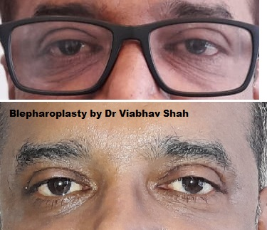 After Before Pics Of Blepharoplasty Eyelid surgery