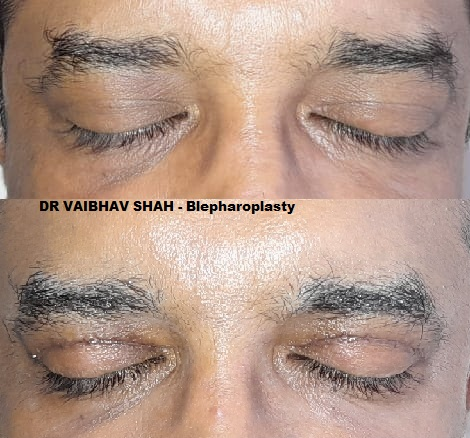Eyelid surgery in mumbai India by dr vaibhav shah