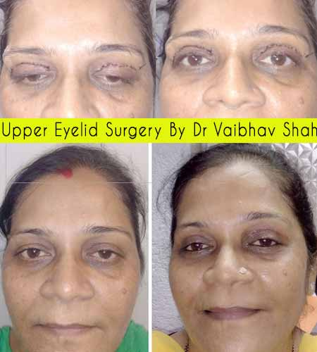 Upper Eyelid Surgery - before after by Dr vaibhav shah